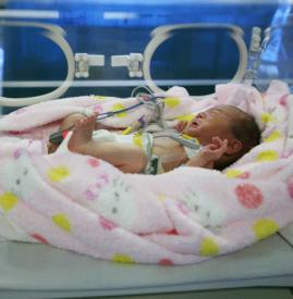 新生儿肺透明膜病 早产儿需格外警惕