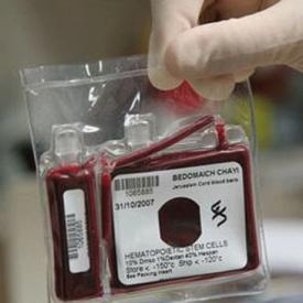 脐带血有必要保存吗 为您详解脐带血的热门问题