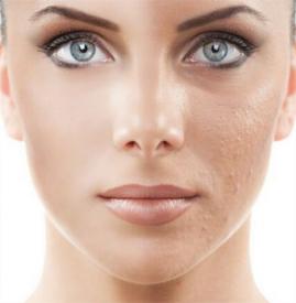点阵激光后多久恢复正常肤色 不同点阵激光恢复不一样