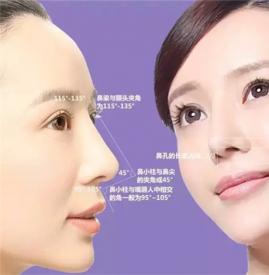自体隆鼻能保持多久 自体软骨和脂肪隆鼻保持时间不相同