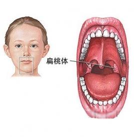 小儿扁桃体发炎是什么引起的