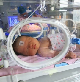新生儿肺炎如何确诊 教你在家简单粗略的判断