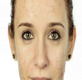 痘印怎么去除 疤痕修复霜被你忽略了
