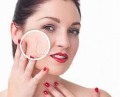 面部红血丝怎么改善 日常护理要注意这三点