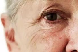 眼角长皱纹别怕 胶原蛋白让皮肤年轻20岁