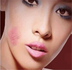 化妆浮粉起皮解决办法 化妆浮粉起皮什么原因