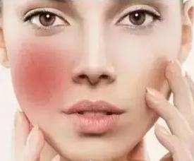 混合敏感肌怎么护理 教你四招拯救皮肤