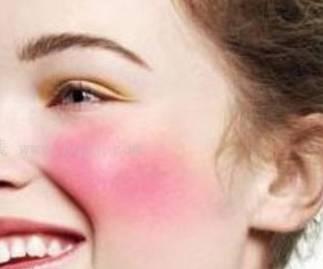 如何判断自己的肤质 判断自己的肤质方法