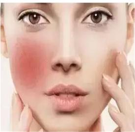 激素脸的形成原因 四大形成激素脸原因分析