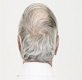 白发变黑妙招 白发变黑用这4招很实用