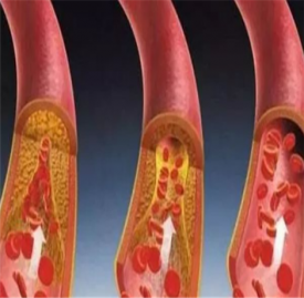 动脉硬化的症状有哪些 血管越来越堵对身体危害大